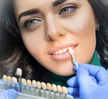 What is the Difference between Dental Veneers and Crowns in Whitby?