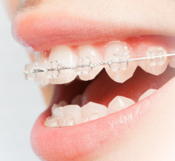 What Are The Do's And Don'ts Of Basic Teeth Cleaning
