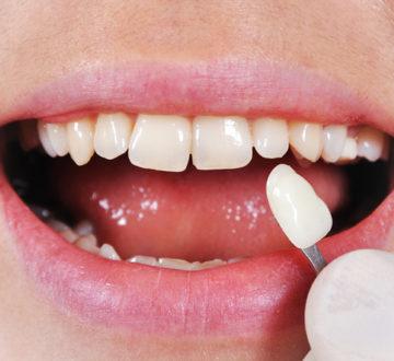 How To Fix A Broken Tooth With Veneers?