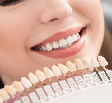 Do These Reasons For Veneers Resonate With You?