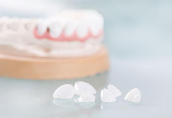 dental veneers peg shaped teeth treatment