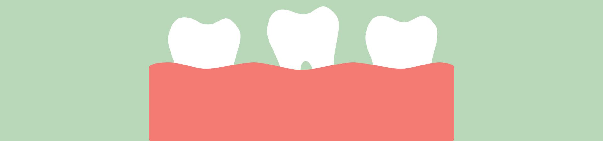 Treatment for Loose Teeth