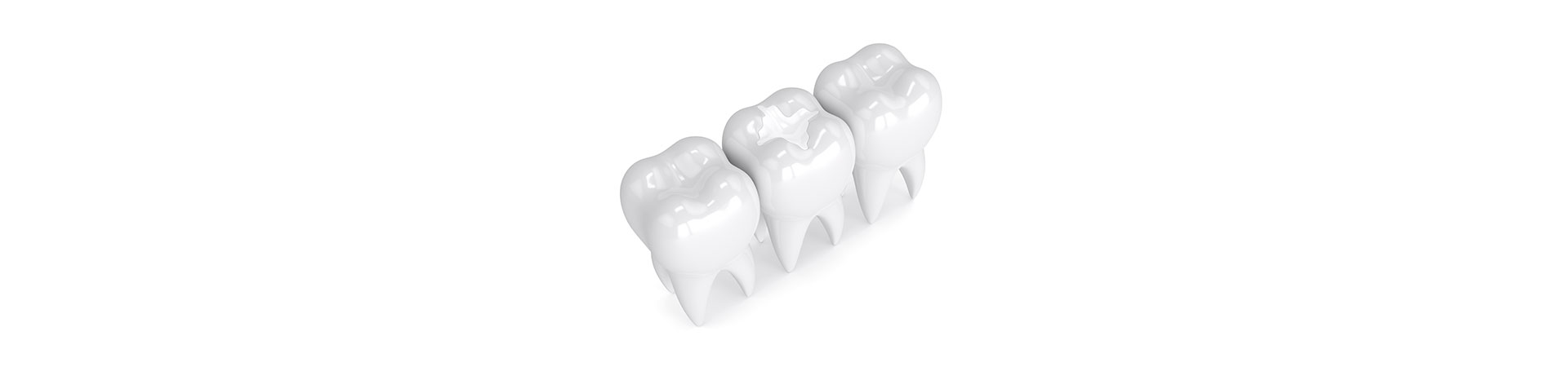 Learn About White Fillings And Silver Fillings